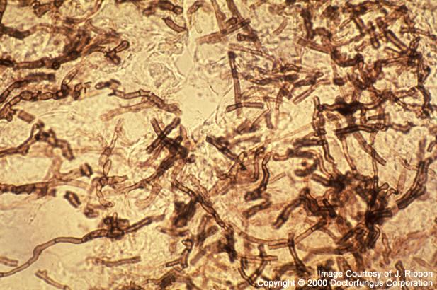 Scytalidium Dimidiatum